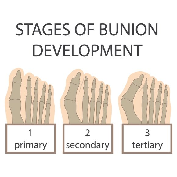 Stages of Bunions in Sugar Land